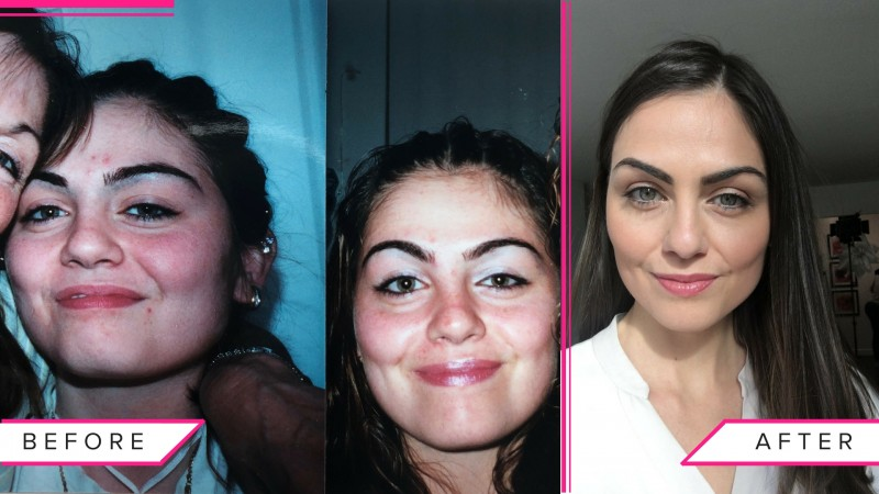 how to treat acne naturally_before and after