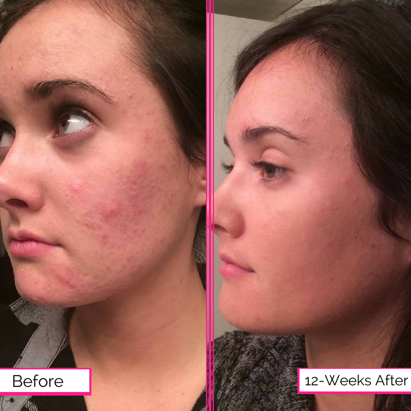 How To Clear Redness On Face Naturally