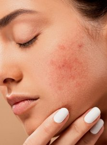 How To Get Rid Of Stress Acne